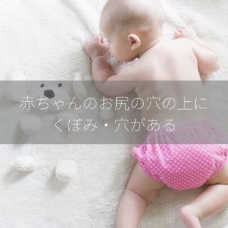 赤ちゃんのお尻の穴の上にくぼみ・穴がある|3件の病院に行ってみた